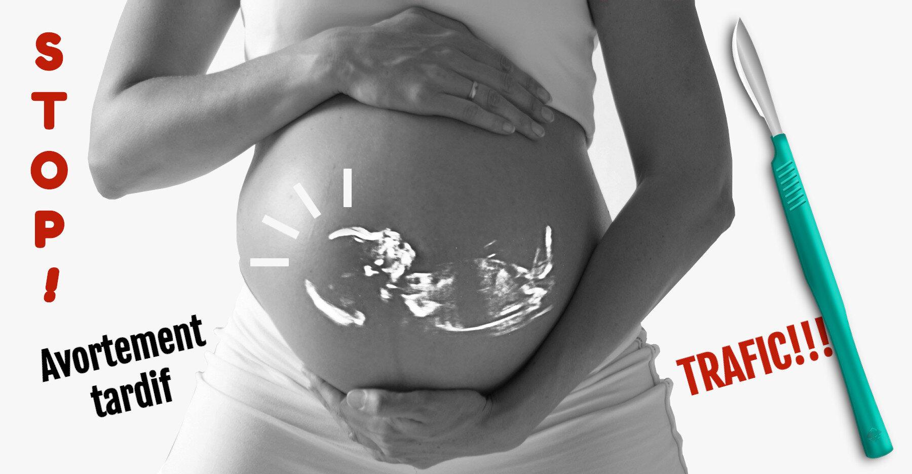 Avortement à terme